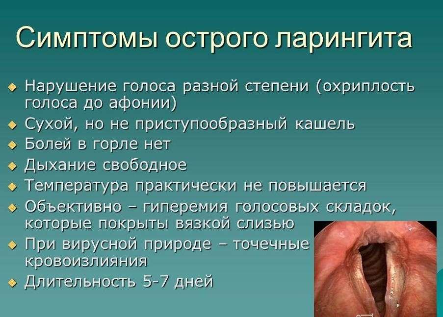 simptomi ostogo laringita