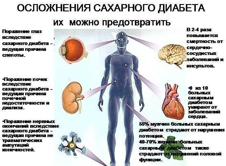 Oslojneniy diabeta 2 tipa