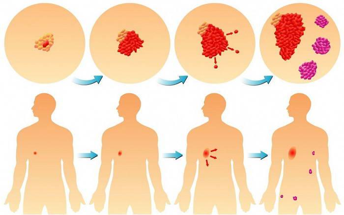 Stadii razvitiya onkologii