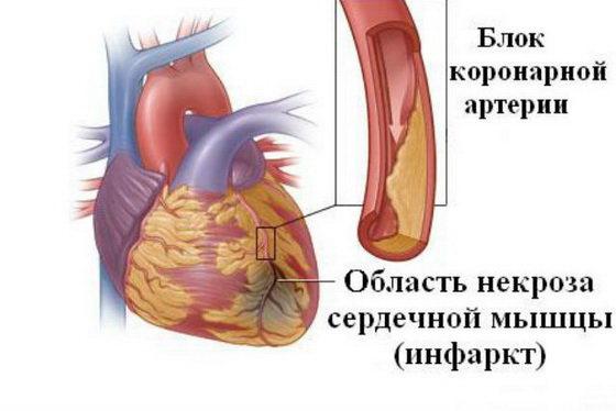 CHto takoe infarkt
