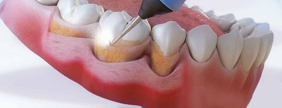 Pochemu poyavlyaetsya zubnoj nalet