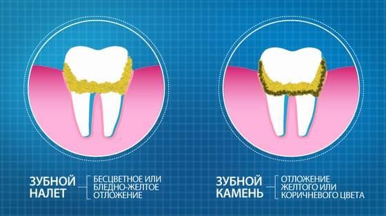 Vidy zubnogo naleta