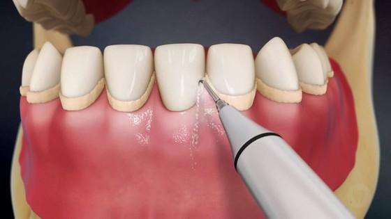 Kak ubrat' zubnoj nalet v usloviyah stomatologii
