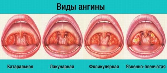 Klassifikaciya form anginy