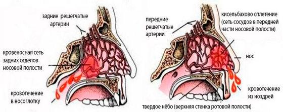 Виды кровотечений из носа