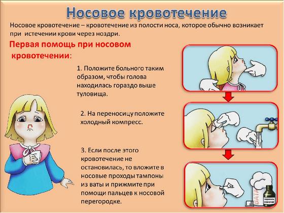 Первая помощи при кровотечении из носа